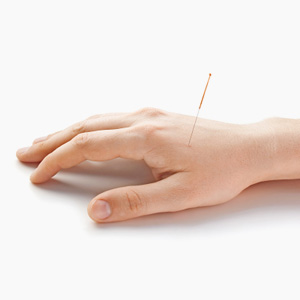 Introduction to Motor Point Needling: Assessment & Treatment of Common Clinical Presentations