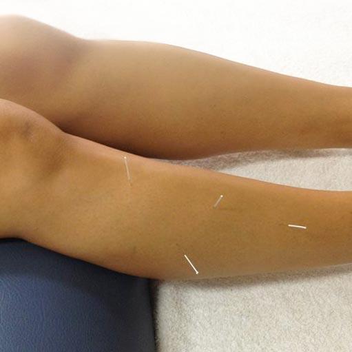 manual-medicine-australasia dry-needling leg