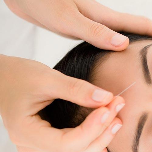 Manual Medicine Australasia Facial Cosmetic Dry Needling closeup